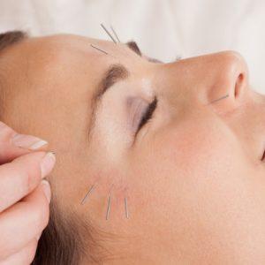 Cosm. acupunc