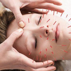Cosm. acupunc3
